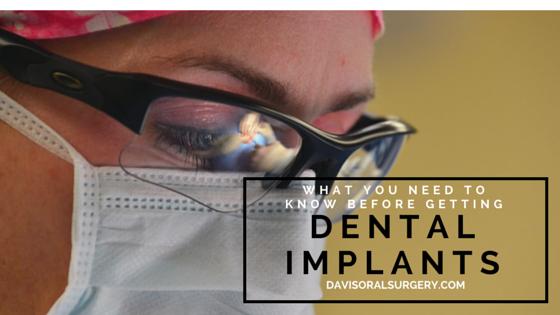 Getting Dental Implants